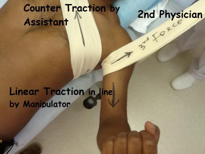 Reduction technique-clinical position