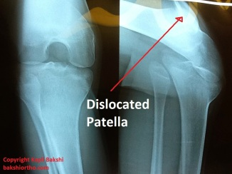 Dislocation of Patella with Subluxed Knee
