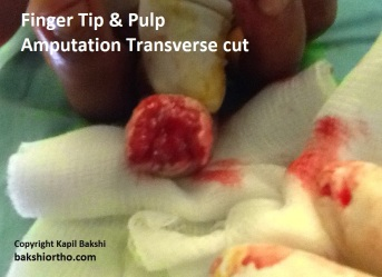 Finger Tip and Pulp Amputation