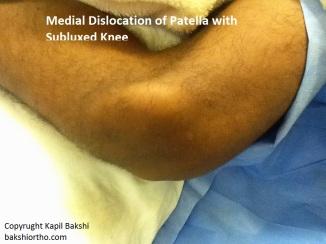 Medial Dislocation of Patella
