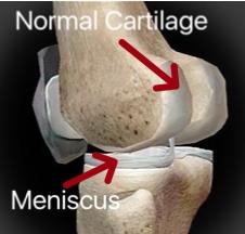 Knee Cartilage Normal