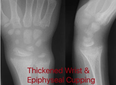 Thickened wrists with cupping
