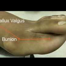 Hallux Valgus Lateral View with Bunion