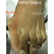 Hallux Valgus with Bunion and Overlapping toes