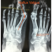 Hallux Valgus X-Ray AP view