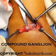Ganglion Dorsum of Wrist