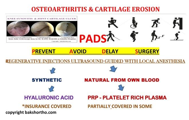 Osteoarthritis and Cartilage Erosion