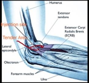 Tennis Elbow Anatomy