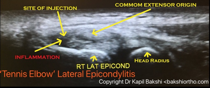 tennis_elbow_ultrasound