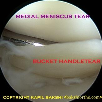 Torn Medial Meniscus - Bucket Handle