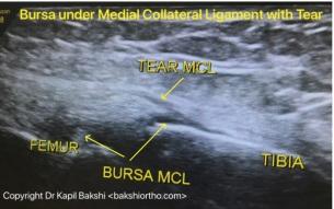 MCL Tear with Bursa