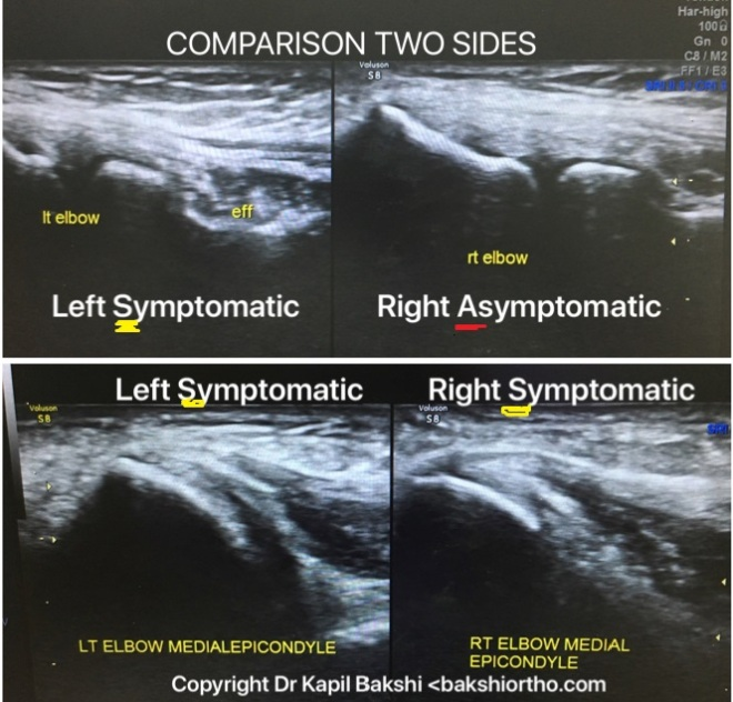 MSK (Musculoskeletal) Ultrasound Normal Anatomy and Pathology ...