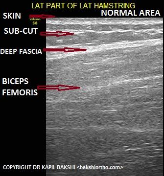 Normal Muscle Area Biceps Femoris