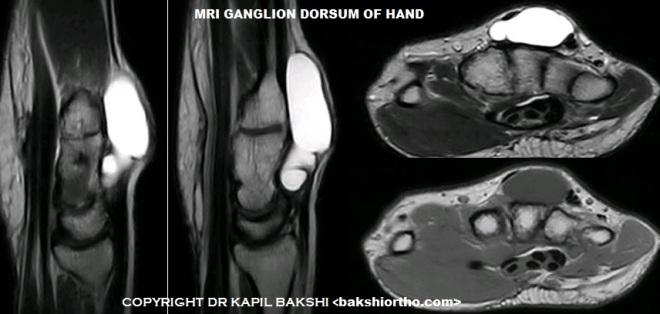 Ganglion MRI sr