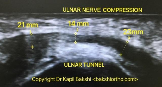 Ulnar Nerve compression at Tunnel