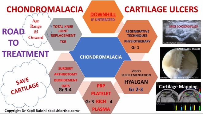 Chondromalacia Road to treatment