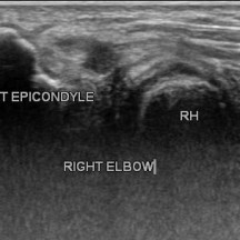 LATERAL EPICONDYLITIS WITH TENDON TEAR