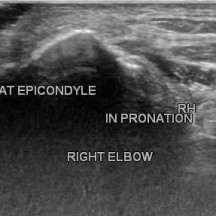 TEAR OPENS IN PRONATION AND WRIST FLEXION,CLOSES IN SUPINATION